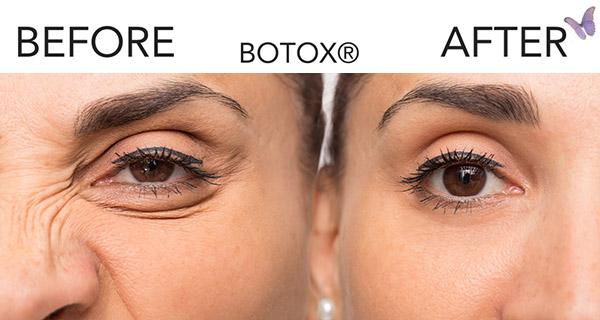 Botox treatment healswrinklesand fine lines