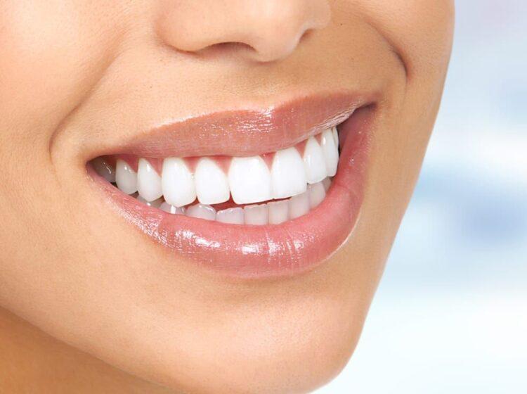 Benefits of Visiting Dentists Regularly